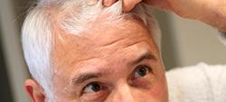 Bioscalin, Biopoint Speedy Hair e Crescina: segnalati all'Antitrust